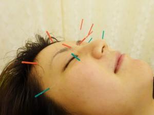 眼精疲労治療|京都市中京区四条烏丸・烏丸御池のほぼ中央にある烏丸鍼灸整骨院