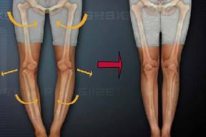 O脚矯正専門機器スタイレックスにより美脚を形成していきます。京都市中京区烏丸御池・四条烏丸のほぼ中央にある烏丸鍼灸整骨院